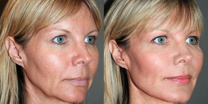 PDO thread facelift before and after